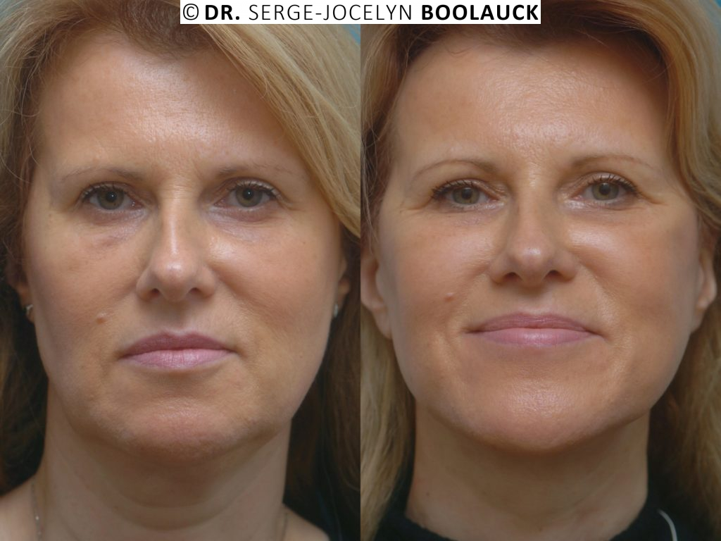 resultat avant/apres lifting cervico facial high et deep