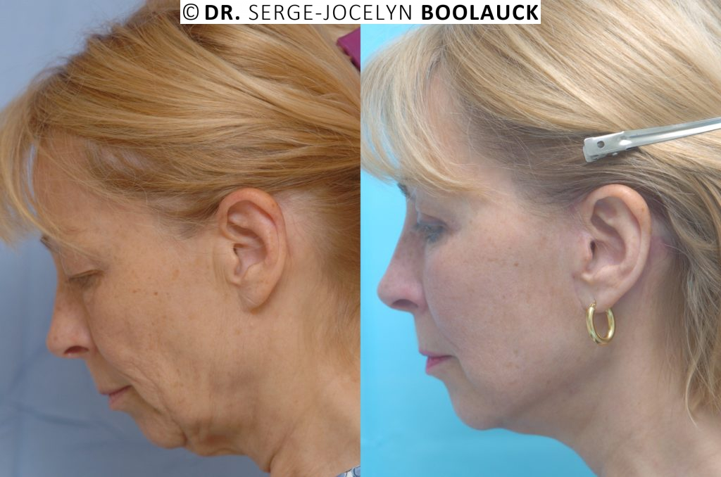 Avant/après lifting cervico facial high SMAS